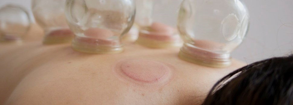 Woman receiving cupping