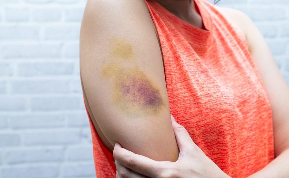 woman bruised arm