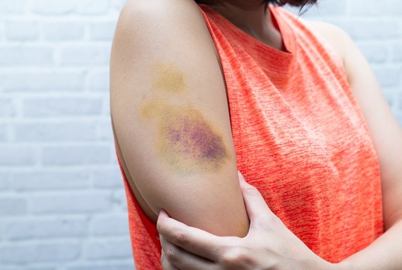 What to Do About Your Sexy Bruises