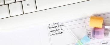 STI STD Test